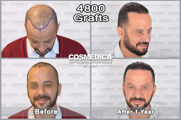 /var/www/html/wp-content/uploads/2018/10/hair-transplant-in-turkey-best-results-7-2