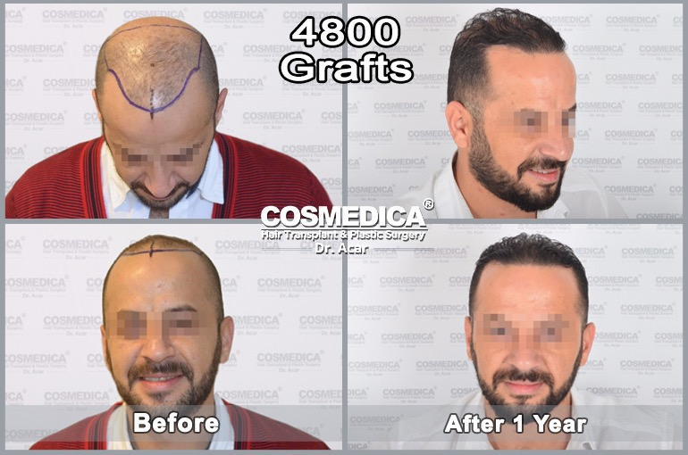 /var/www/html/wp-content/uploads/2018/10/hair-transplant-in-turkey-best-results-7